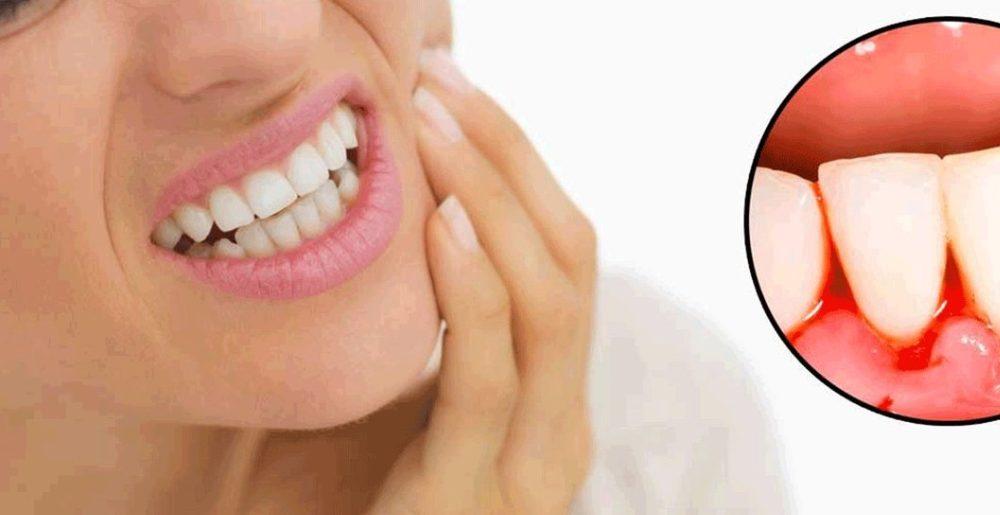 Воспаление зубов (десен)